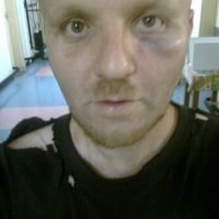 Michael Hampton after attack